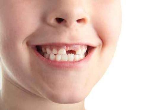 حلم سقوط الأسنان بالدم وبدون دم للمتزوجة والعزباء تفسير