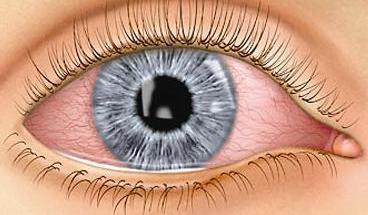 ����� ������ ��� ������ �� ��� ����� , Eye Summer 2013_1384555552_274.